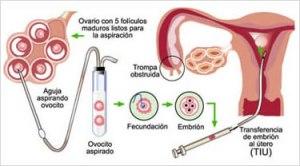 fecundación-in-vitro