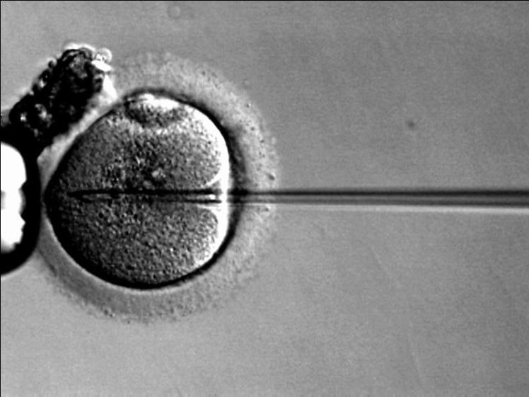 fecundacion-in-vitro-Icsi