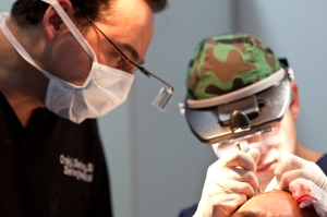 hair-transplant-fue-treatments