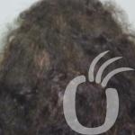 clinica trasplante capilar y injerto de pelo en marbella